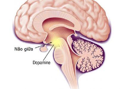 Bệnh sa sút trí tuệ Parkison: Nguyên nhân, cách nhận biết và điều trị hiệu quả 1
