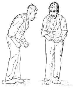 Bệnh sa sút trí tuệ Parkison: Nguyên nhân, cách nhận biết và điều trị hiệu quả 3