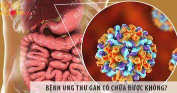 Bệnh ung thư gan có chữa được không? Chữa bằng cách nào?