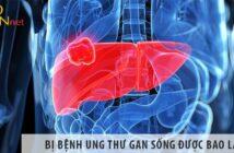 Bị bệnh ung thư gan sống được bao lâu?